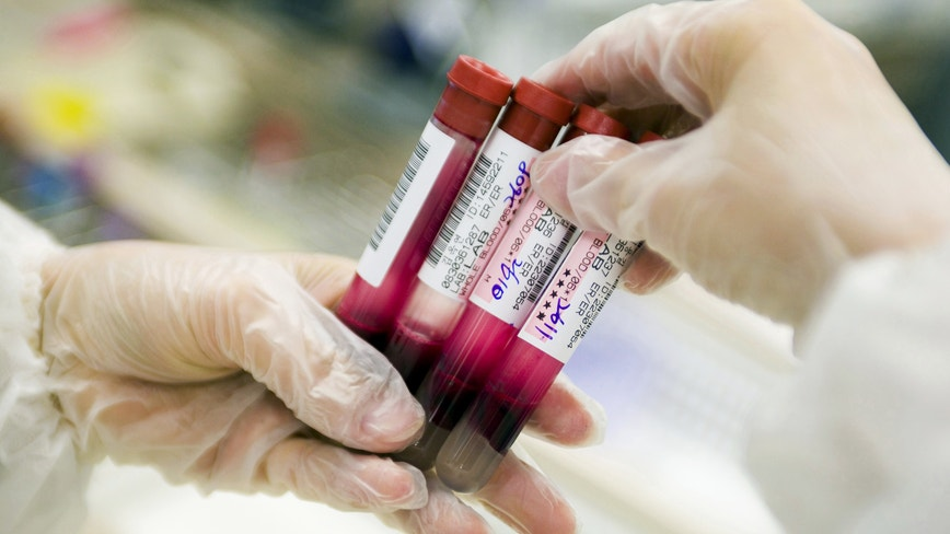 FDA modifies donor restrictions to allow some gay men to donate blood amid shortage due to COVID-19