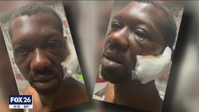 Lawsuit filed against Baytown police officers accused of beating and tasing Black man