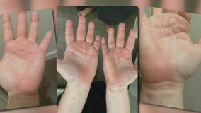 Houston-area woman believes cleaning chemical on shopping cart burned her hands
