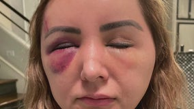 Reward offered after Sugar Land woman attacked while taking out trash