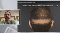 Hair transplants: all your questions answered