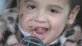 3-year-old girl recovering after being mauled by dog in Spring