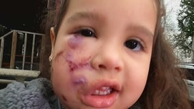 Dog accused of attacking 3-year-old girl taken to animal shelter in Montgomery Co.