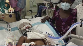 3-year-old Helena on ventilator after being shot in head during drive-by shooting in North Houston