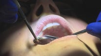 Researchers believe gum disease could be causing severe symptoms of COVID-19