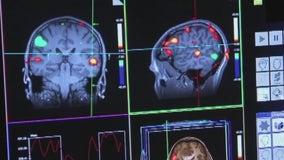 FDA approves new medication in fight against Alzheimer's