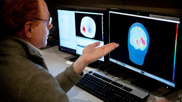 COVID-19 brain fog could last for months, new study shows