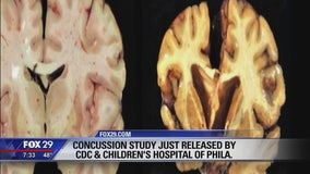 Children's Hospital of Philadelphia and CDC release new concussion study
