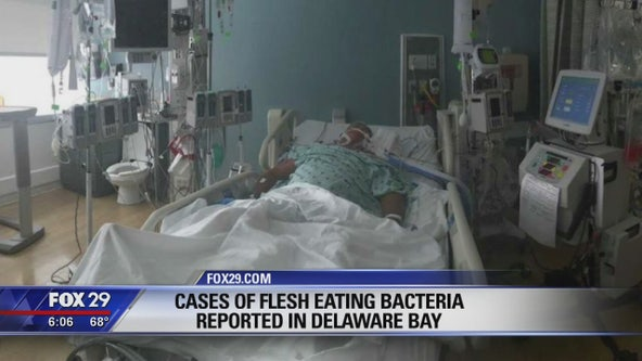 Cases of flesh-eating bacteria reported in Delaware Bay