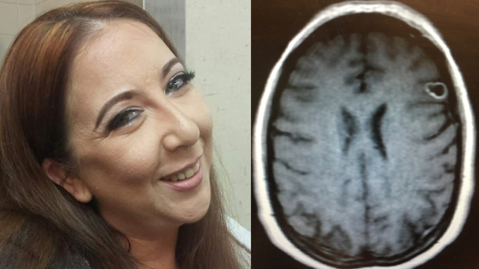 Rachel Palma, pictured, went to the doctor after experiencing some unusual symptoms and discovered she had a brain lesion. It turned out to a tapeworm egg.