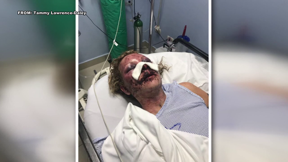 Del. woman sues Dominican Republicresort for $3 million after alleged attack