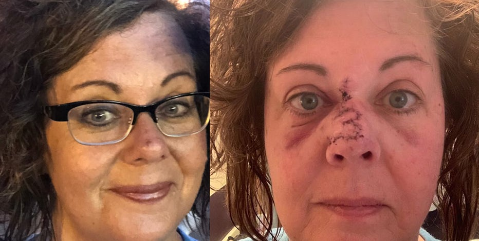 Woman S Innocent Looking Freckle Turns Out To Be Melanoma
