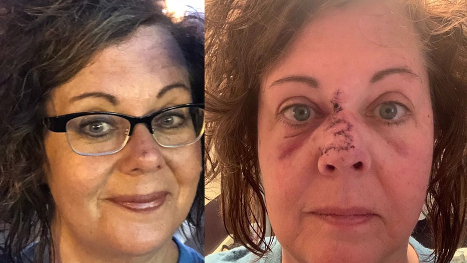 Lisa Ryan is pictured in an image taken in 2017, before her skin cancer diagnosis, alongside a photo during her recovery from three surgeries and reconstruction. (Photo credit: Lisa Ryan)