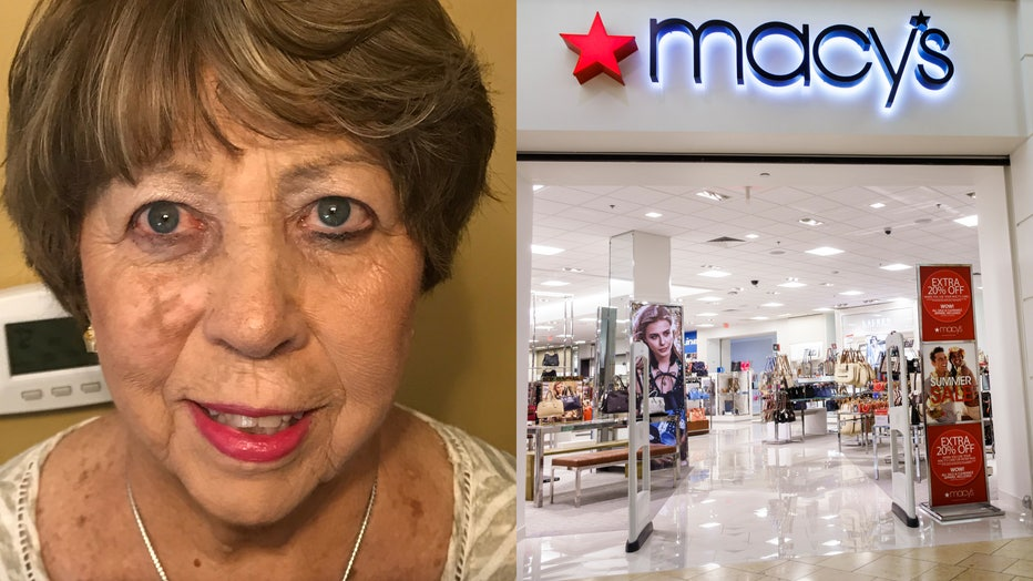 """An image dated June 26, 2019 shows the """"X"""" mark on Judith Pleunik's right cheek, alongside a file image of a Macy's storefront. (Photo credit: Provided / Jeffrey Greenberg/Universal Images Group via Getty Images)"""