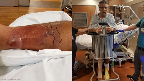 Florida man who thought he had a bad sunburn on leg nearly dies from flesh-eating bacteria
