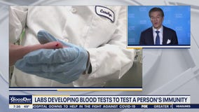 Labs develop blood tests to determine person's immunity during COVID-19