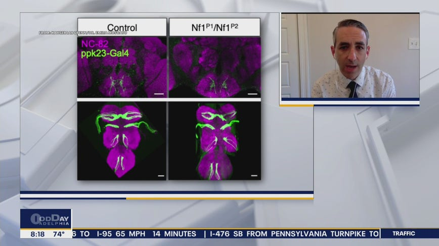New UPenn autism study outlines impact of sensory neurons