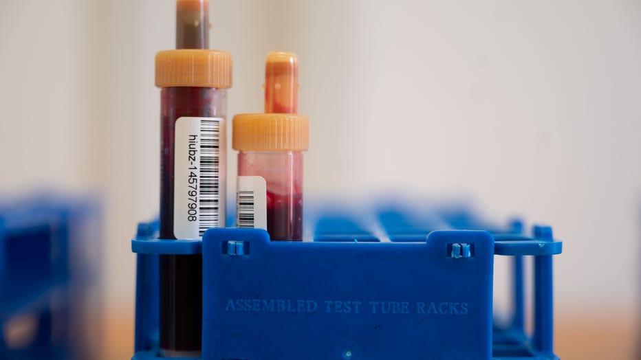 Nationwide corona antibody study has started