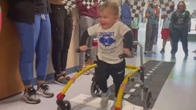 Toddler, paralyzed from neurological disorder, given celebratory sendoff as he walks out of hospital