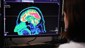More than a third of COVID-19 survivors suffer neurological and psychiatric effects, study finds