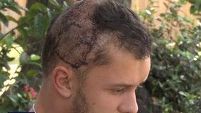 Alligator bites down on Florida man's head