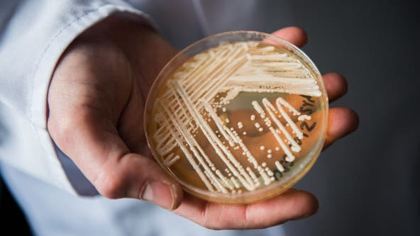 C. Auris superbug seen around US in clusters for 'first time', CDC says