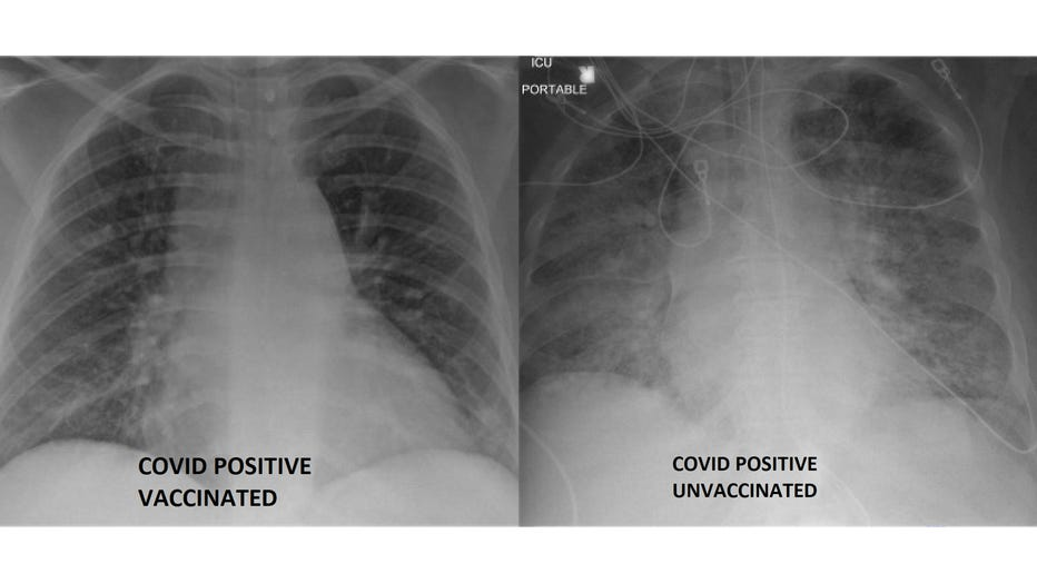 side-by-side-covid-lung-white-background.jpg?ve=1&tl=1
