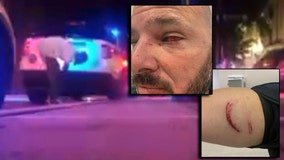 Video shows Orlando officers ambushed by man with brick, police say