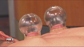 Cupping: why you're seeing it on Olympians and how to try it yourself