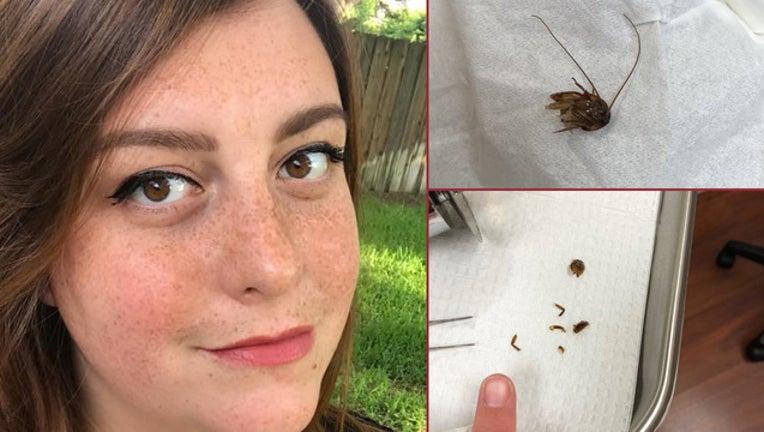 9ff0ce3a-Katie-Holley-cockroach-in-ear_1525462052579-402429.jpg