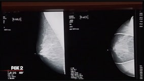 The Doctor Is In: Mammograms