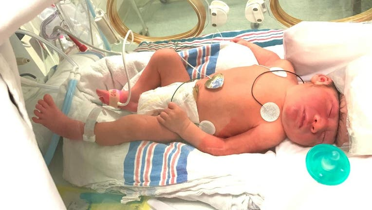 Lucas Santa Maria was diagnosed with exencephaly early into his mother's pregnancy.
