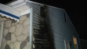 Pontiac teen sets himself on fire by accident using gasoline