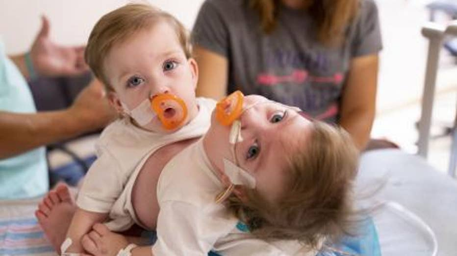 Sarabeth and Amelia Irwin were seperated after an 11-hour surgery at University of Michigan Children's Hospital.