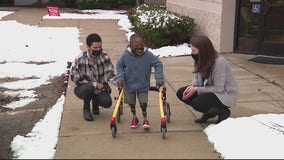 African boy gets freedom with new set of prosthetic legs