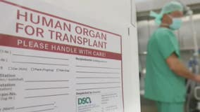 State Rep wants to make HIV organ donation to others with HIV legal in Michigan