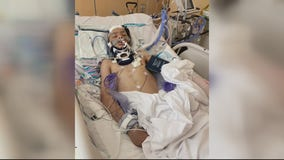 Teen boy fights for his life after being hit on his minibike