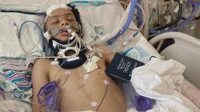 Pontiac teen fights for his life after minibike crash with car