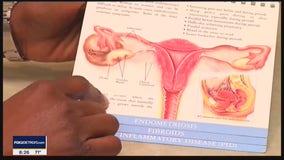 The Doctor Is In: Endometriosis