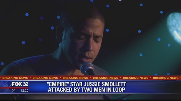 'Empire' star Jussie Smollett hospitalized after possible hate crime in Chicago
