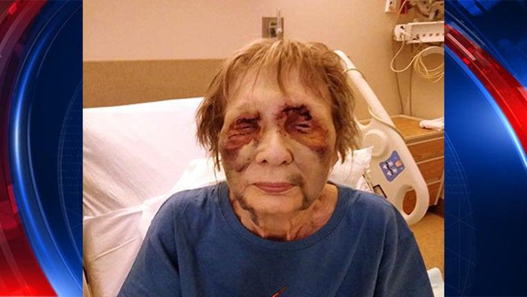 84621a4a-80 yearold beaten raped_1530906523832.jpg-403440.jpg