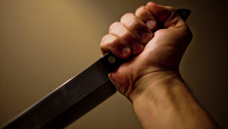 knife-hand_1446992304648.jpg
