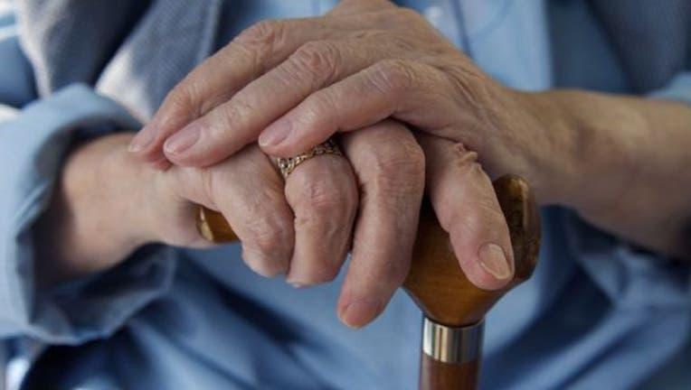 elderly-old-person-hands-dementia