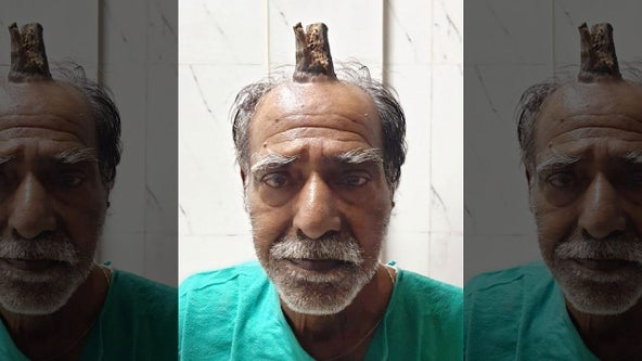 Man has 4-inch 'devil horn' removed from head
