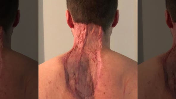 Dad's skin cancer battle leaves him with massive chunk missing from neck, back