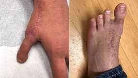 Michigan man's toe used to replace thumb sawed-off in woodworking accident