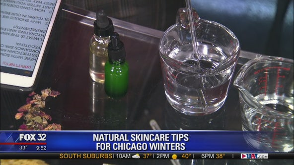 Skincare tips for surviving those brutal Chicago winters