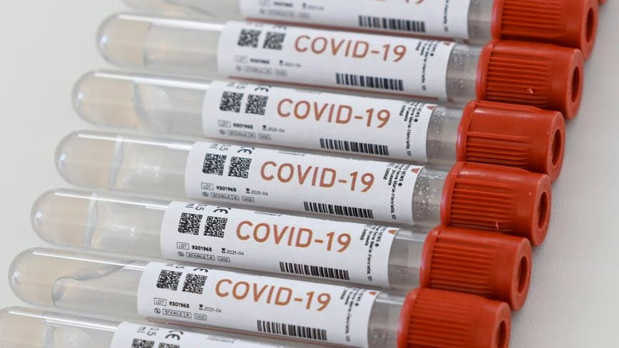More than 1,300 more daily COVID-19 cases reported in Illinois