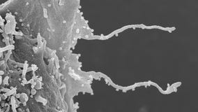 COVID-19 infection triggers growth of arm-like tentacles in cells, microscope images show