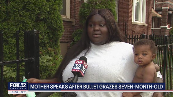 Chicago mother speaks out after her baby son was grazed by bullet